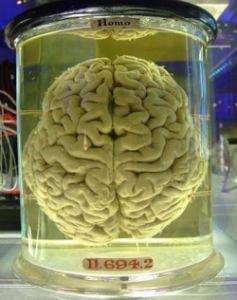 474px-human-brain_257[1]