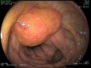 Case-A-1.-Large-left-colon-polyp[1]