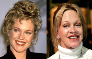 Melanie-Griffith-Before-And-After-Plastic-Surgery[1]